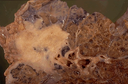 This is a squamous cell carcinoma of the lung. It is a bulky mass that extends into surrounding lung parenchyma.