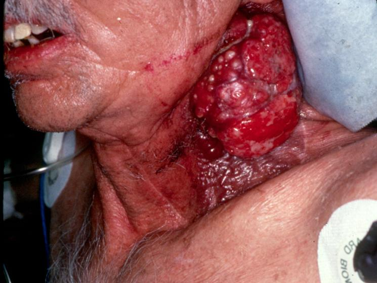 Here is a smoker whose cancerous tumor started in his mouth and moved to his neck before killing him.