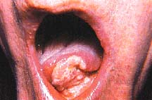 Mouth cancer from smokeless tobacco.  At least smokeless tobacco users don't hurt or kill innocent people with their addiction.