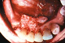 Mouth cancer from chewing tobacco.