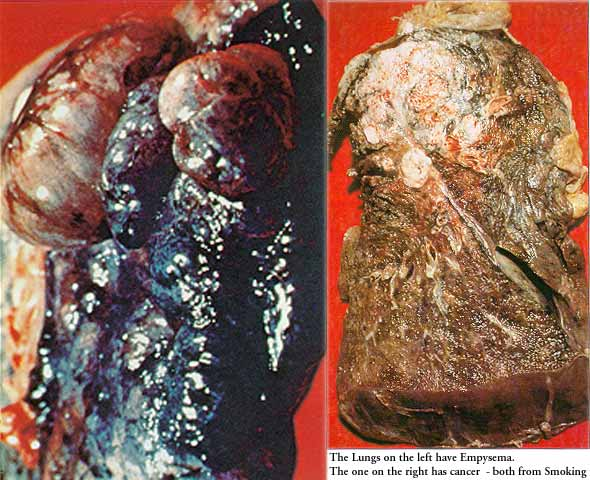 The lung on the left has emphysema, the lung on the right has cancer.  Just a reminder, emphysema is a terrible way to die. Cancer is much faster and less painful.  Or at least that's what we're told....over and over and over